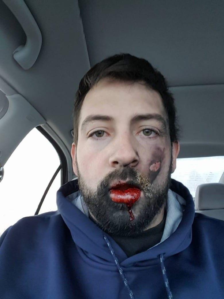 Pourquoi une cigarette électronique explose au visage ?
